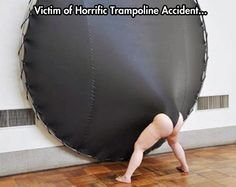Funny Pictures of the week, 30 images. Victime Of Horrific Trampoline Accident