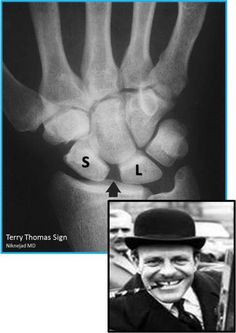 This abnormal bone structure of the wrist with a gap between the Scaphoid and the Lunate , where ordinarily they are close, is named the Terry Thomas sign after a famous British actor who had a gap between his two front teeth ! Wrist Anatomy, Hand Anatomy, Radiology Imaging, Medical Imaging, Radiologic Technology, Terry Thomas, Bone Diseases, Hand Therapy, Ehlers Danlos Syndrome