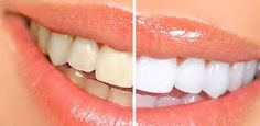 Orthodontists Dublin perfect solution to teeth whitening