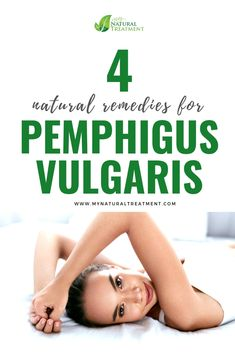 Here you have the most amazing 4 natural remedies for pemphigus vulgaris using st. john's wort oil, elder flower infusion and other herbs. Natural Detox, Natural Skin, Herbal Remedies, Natural Remedies, Orange Colored Fruit, Elder Flower, Natural Detergent, Liver Cleanse