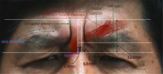 #1-2. Upper Face: Forehead & Glabella   D&PS
