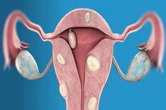 Fibroids during pregnancy ovarian cyst,ovarian fibroids symptoms uterine fibroids and bleeding,uterine fibroids leiomyomas where can you get fibroids. Uterine Fibroids Symptoms, Fibroid Cyst, Fibroid Uterus, Fibroid Surgery, Prolapsed Uterus, Natural Cures, Health, Aloe Vera, Teas