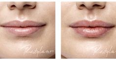 #Enhance Your #Pout At Skin Med Spa. Call Us Now to Book!! (310)899-9000   Skin Med Spa 1333 2nd St #46 Santa Monica, Ca 90401 (310)899-9000  #santamonica #marinadelrey #gorgeous #lips #beauty #restylane #bestoftheday #like4like #instagood