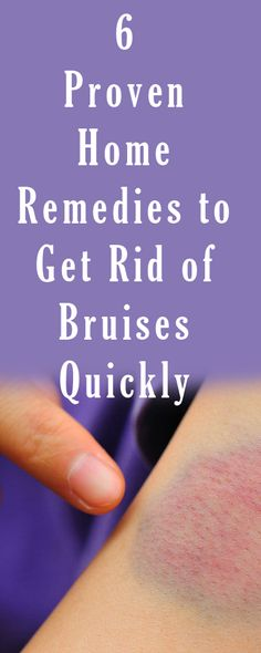 How to Get Rid of Bruises http://testedhomeremedies.net/how-to-get-rid-of-bruises.html