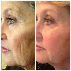 Recobra la lozanía de tu piel con Nerium-Optimera http://beautyskin1.nerium.com
