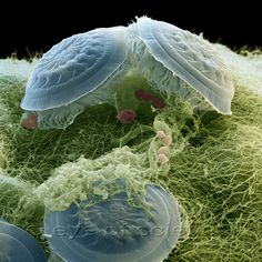 Small animals seen in the Scanning Electron Microscope - ciliates