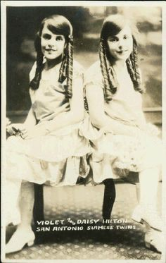 """Violet and Daisy Hilton aka """"the Hilton Sisters"""" (siamese twins, joigned at the base of the spin), San Antonio (real photograph postcard, ca. 1920, photographer : unknown). They were born in Brighton, England, on 19 February 1908."""