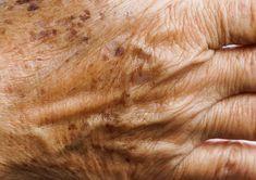 Bli kvitt åldersfläckar: Enkla husmorsknepet får din hud att se 10 år yngre ut Neutrogena, Bra Hacks, Body Treatments, Natural Health, Anti Aging, Health Fitness, Hair Beauty, Skin Care, Diet
