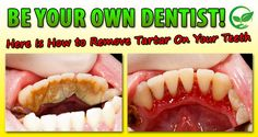 Regardless of whether you smoke or not, you want to whiten and to remove the plaque deposits of your teeth. Plaque deposits are stuck to your teeth. It is not good to have it, because it can damage your teeth. The plaque and the tartar can harm your teeth