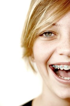 Besides Straight Teeth, What are the Benefits of Braces?