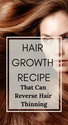 Hair growth recipe that can reverse hair thinning, you can actually see new hair growth within a few days – Favorites Hair Styles Dramatic Hair, New Hair Growth, Hair System, Hair Falling Out, Hair Starting, Hair Loss Remedies, Prevent Hair Loss, Hair Loss Treatment, Hair Growth