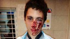 Brutal agresión a un joven en Rosario terminó con múltiples fracturas - Infobae.com