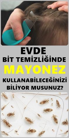 Herbal Solutions for Lice Cleaning - Pizlo pin Ancient Greek Sculpture, Muscle Structure, Lemon Car, Chinese Medicine, Oral Hygiene, Turmeric Root Extract, Classical Art Memes, Human Body, Anti Aging