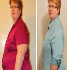 Lose Weight Fast , Weight Loss Motivation , Before and After Weight Loss Photo Fast Weight Loss, Weight Loss Program, Healthy Weight Loss, Weight Loss Tips, Fat Fast, Ways To Loose Weight, Need To Lose Weight, Reduce Weight, Losing Weight