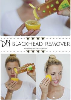 12 DIY Blackhead Removal Hacks & Tips No Teenager Will Be Able to Live WithoutCheck out here  NaturalProducts For blackheads problems!
