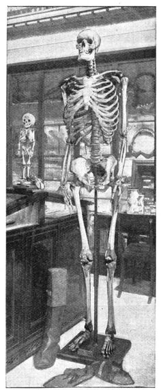 The skeleton of Charles Byrne (who went by the name of O'Brien) and died in 1783 at the age of 22. O'Brien was 8ft. 4in. in height. He lived in Charing Cross, London until his death, said to have been due to excessive drinking. The tiny skeleton on the left of the picture is Caroline Cachami, nicknamed the Sicilian Dwarf. She was exhibited in London in 1824 and died at the age of nine, never having grown since birth.