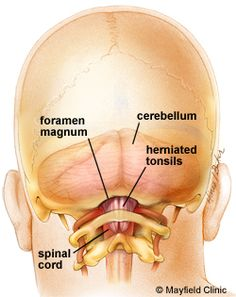 Chiari Brain: see the piece of brain poking out beyond the bottom of the skull which should not be visible.