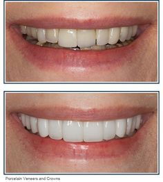 Veneers have become incredibly popular in recent years since they provide a practical way to get a perfect smile, even for those with very discolored or misshapen teeth. Best Dentist, Dentist In, Porcelain Crowns, Root Canal Treatment, Smile Design, Mental Health Care, Perfect Smile, Cosmetic Dentistry, Dental Implants