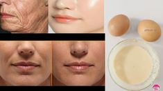 Use Egg This Way Your Skin Will Look So Young, Tight, Spotless & Scar Free! - YouTube