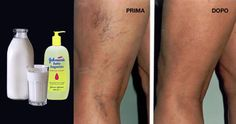 Many people suffer from varicose veins and thrombosis. Women are more prone to these [Leggi … Beauty Make Up, My Beauty, Health And Beauty, Beauty Hacks, Hair Beauty, Healthy Juices, Healthy Tips, Wellness Fitness, Health Fitness