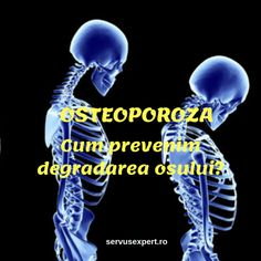 Metode simple pentru a o preveni Herbal Remedies, Natural Remedies, Sciatica, Good To Know, Herbalism, Health Fitness, Hair Beauty, Gym, Simple