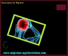 Rizatriptan For Migraine 145033 - Cure Migraine