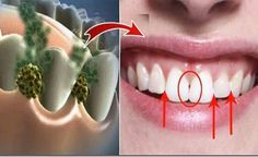 Eliminujte zápach z úst. Zničte baktérie, ktoré spôsobujú zápach z úst! - Báječný lekár