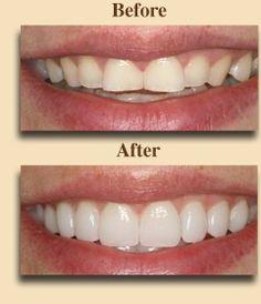 If you have misshapen teeth, unsightly gaps, or deep discoloration, our porcelain veneers may be the answer. Veneers Teeth, Dental Veneers, Smile Teeth, Teeth Care, Composite Veneers, Dental Bonding, Family Dental Care, Porcelain Veneers, Dental Humor