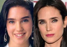 Jennifer Connelly Plastic Surgery, Before and After. #jenniferconnelly #cosmeticsurgery #plasticsurgery #celebritysurgery #botox #facelift