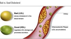 For improving HDL cholesterol, also known as good cholesterol, one needs to increase the consumption of foods that are rich in good fats such as avocados, peanuts , nuts, and fatty fish such as salmon and sardines.  HDL cholesterol removes fat molecules from the blood, which when they accumulate can create problems like atherosclerosis and heart attacks.