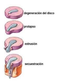 Cuerpo sano; recibo Osteopatía Profesional: Hernia Discal