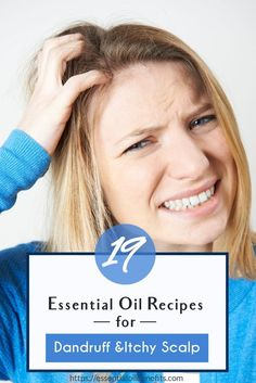 Suffering from a dry, itchy scalp? With the seasons changing and the air becoming a bit more harsh, it& common to have dandruff from your dry skin. Here are the best essential oils to help treat dandruff and itchy scalp. Dandruff Essential Oil, Oils For Dandruff, Patchouli Essential Oil, Essential Oils For Skin, Essential Oil Blends, Itchy Scalp Remedy, Dry Itchy Scalp, Dandruff Remedy, Dry Skin Remedies