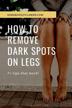 Dark Spots Under Armpits, Dark Spots On Legs, Lighten Scars, Lighten Dark Spots, How To Fade Scars, How To Lighten Knees, Fade Cream Dark Spots, Remove Scars On Legs, Leg Scars