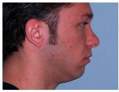 Chicago Chin Augmentation Before and After Photos - Naperville Plastic Surgery Photo Gallery - Dr. Facial Implant, Chin Implant, Plastic Surgery Photos, Photo Galleries, Chicago, Gallery, Men, Roof Rack, Guys