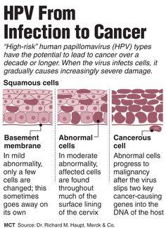 Resultado de imagem para hpv virus estrutura | HPV | Pinterest