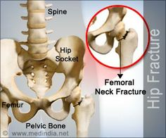 Hip fracture is a break in the upper part of thigh bone (femur) near to the hip joint. Hip fracture symptoms, causes and treatment are highlighted in this article. Bone Health, Nursing, Education, Board, Teaching, Training
