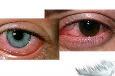 經常看手機眼花了吧?教你一招:恢復視力的奇穴! LIFE生活網