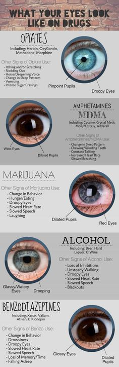 whats your eyes look like on drugs