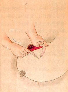 Breast cancer treatment, 1809    These illustrations are from an 1809 book documenting various surgeries performed by Seishū Hanaoka for the treatment of breast cancer. The illustrations here depict the treatment for a 60-year-old female patient.