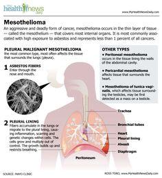 mesothelioma Symptoms and treatments http://thebestasbestosattorneys.weebly.com/types--symptoms.html