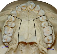 Maxilla-occlusal-view-dry-skull-orthodontist-Chamberland-Quebec