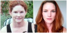 HYPOTHYROID in photos - Before After pictures