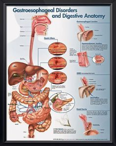 Gastroesophageal Disorders and Digestive Anatomy poster illustrates digestive anatomy and disorders like Barrett's esophagus, GERD, hernia, ulcers. Gastroenterology for doctors and nurses. <3