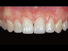 Керамические виниры на 4 передних зуба