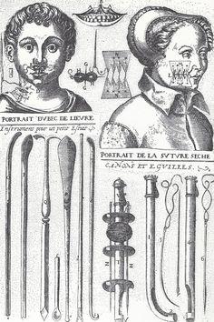 """Grabado sobre el tratamiento quirúrgico del labio leporino de Jacques Guillemin (""""La chirugie Françoise"""", Paris 1598)"""