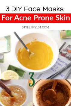 4 Natural Treatments to Clear Acne Scars - How to Get Rid of Blackheads Permane. 4 Natural Treatments to Clear Acne Sca. Scar Removal Cream, Acne Scar Removal, Acne Face Mask, Face Masks, Get Rid Of Blackheads, Pimples, Scar Treatment, How To Treat Acne, Acne Prone Skin