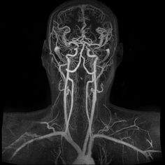 Magnetic Resonance Angiogram of the Brain   Magnetic resonance angiography (MRA) is a group of techniques based on magnetic resonance imaging (MRI) to image blood vessels. Magnetic resonance angiography is used to generate images of the arteries in order to evaluate them for stenosis (abnormal narrowing), occlusion or aneurysms (vessel wall dilation that is at risk of rupture).