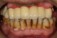 優植美全瓷牙(鋯)冠All-Ceramic Crowns,+886-6-2461183名牌牙」:http://youtu.be/wB7YlUzR9l0