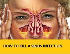 Sinusitis Remedies Having clogged sinuses isn't fun. Finding relief when you have clogged sinuses is usually like finding a million dollars on the ground - it's amazing! Home Remedies For Sinus, Allergy Remedies, Natural Health Remedies, Natural Cures, Flue Remedies, Chest Congestion, Nasal Congestion, Congestion Relief, Post Nasal Drip Remedy