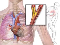 Types of Angina with Treatment and Nursing Intervention